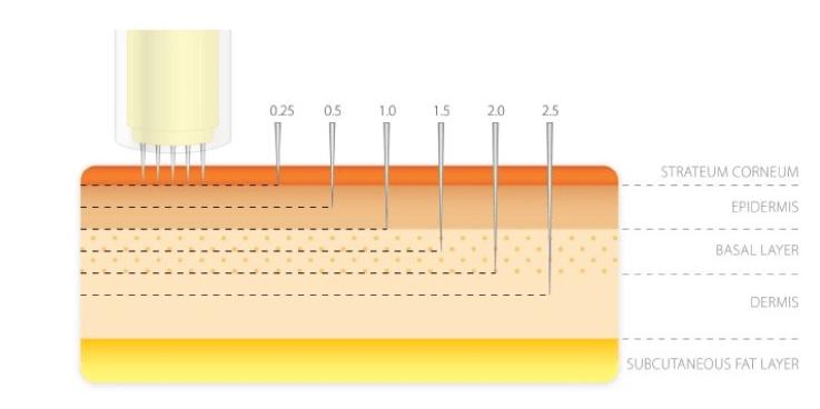 Microneedeling-Adancime Penetrare