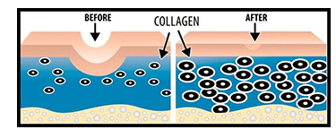 Microneedeling-Producere Colagen